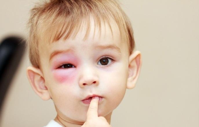 Картинки по запросу ячмень у ребенка