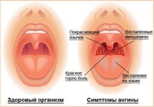 диагностика детской ангины