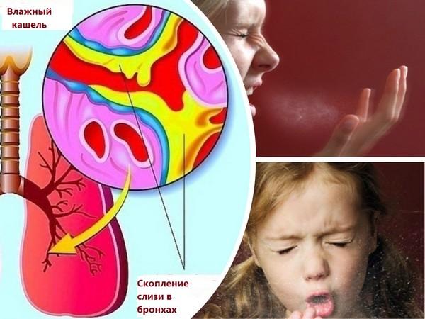 Чем лечить влажный кашель у ребёнка