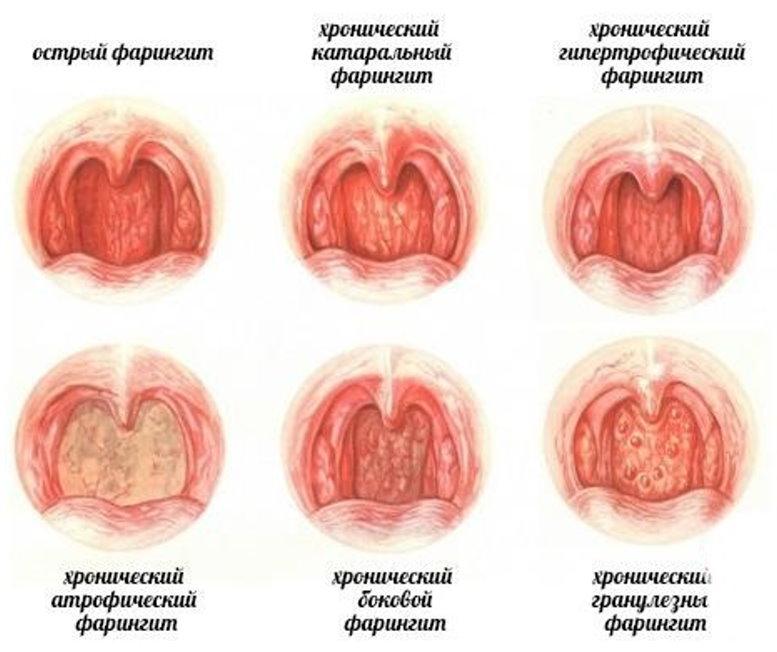 симптомы фарингита у детей 7 лет