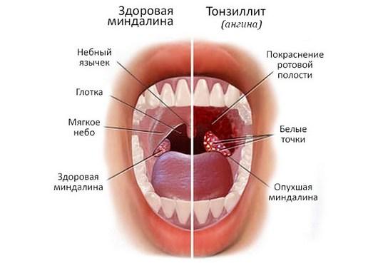 Что такое бактериальная ангина?