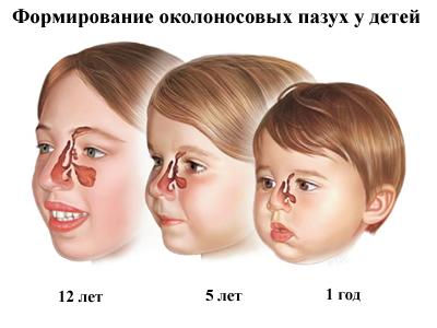Симптомы синусита у детей