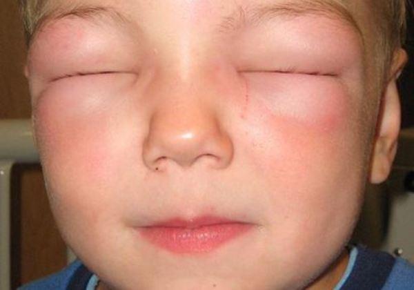 Особенности детской аллергии